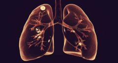 """علامات السرطان التي تنسب لأعراض """"كوفيد-19"""""""