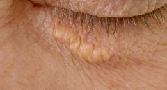 علامة في العين ظهورها ينذر  بخطر الإصابة بنوبة قلبية