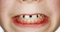 لماذا يطور البعض فراغات بين أسنانهم؟