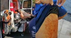 القدس: إصابة سائق حافلة عربي تعرّض للطعن