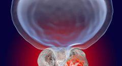 ألم في 3 أجزاء غير متوقعة من الجسم قد يدل على الإصابة بسرطان البروستات!