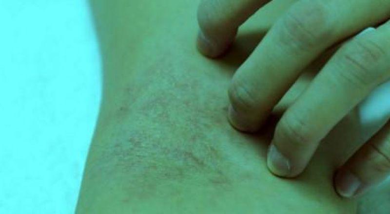 طريقة غير اعتيادية لكشف سرطان الدم مبكرا